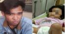 Bocah Dua Tahun Patah Tulang Dianiaya Pacar Ibunya - JPNN.com