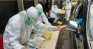 Kenali Gejala Baru Virus Corona, Perhatikan Area Kulit - JPNN.com